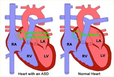 ماهو ASD؟