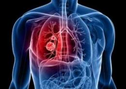 RHD - ماهو الروماتیزم القلبی؟